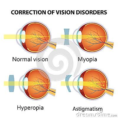 1.5 Desordenes de la percepción visual - Anatomia y fisiologia del ...