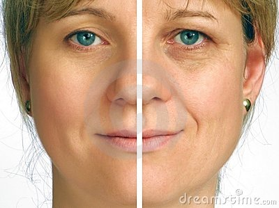 Correction of wrinkles - half of face Stock Photo