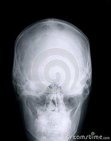 Cranio dei raggi x