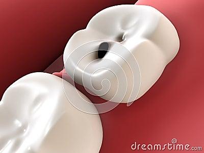 Cárie do dente