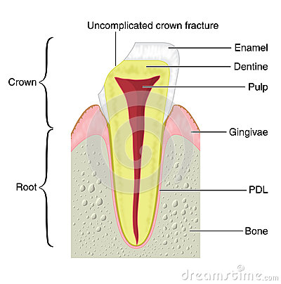 Cross section of a tooth with a crown frac