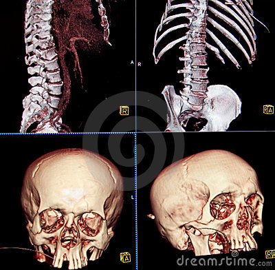 CT of body and head bones