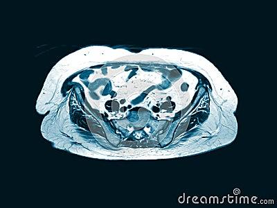 CT GANZE ABDOMEN Es gibt eine ovale Masse von 9 cm Durchmesser bei mittlerer Beckenhöhle stock video footage