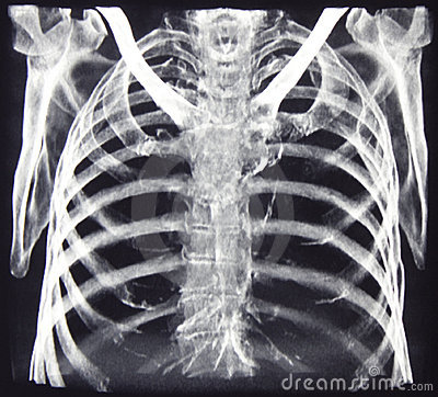 Free CT Of Chest Bones Royalty Free Stock Photos - 8366298