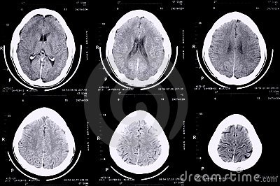 Ct scan brain