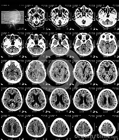 how to read ct brain