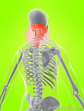 Cuello humano con dolor