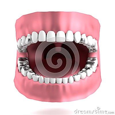 3d render of human teeth with fillings