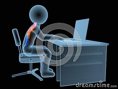 3d Rendered Medical Illustration Wrong Sitting Posture
