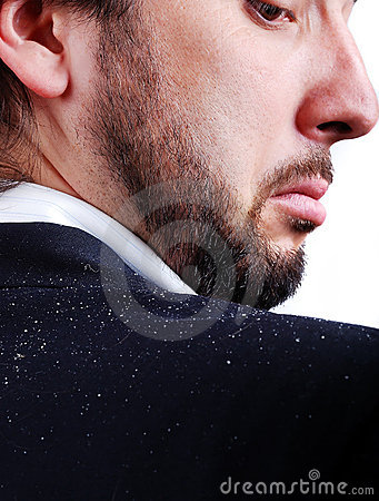 Free Dandruff Issue On Man S Sholder Royalty Free Stock Photography - 10424047