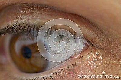 De aders van het oog