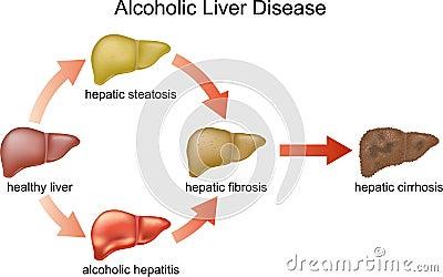 Lever alcohol herstel