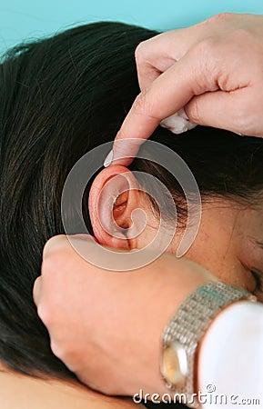 De behandeling van de acupunctuur