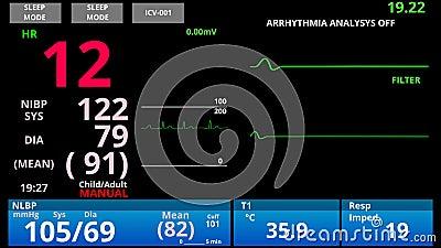 De patiënt keert terug van medische dood, pulp omlaag en dan omhoog, of de vitale functies van de ER monitor stock footage