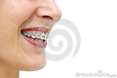 De Steunen van tanden