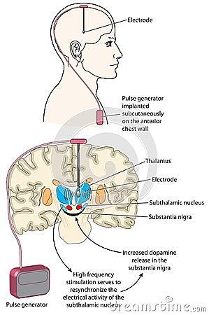 Brain development age image 1