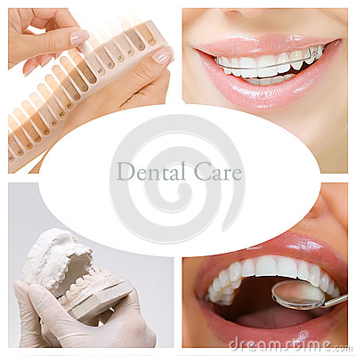 Free Dental Care Collage (dental Services) Stock Photos - 59343243