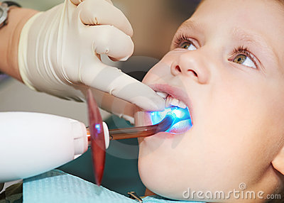 Dental filing of child tooth by