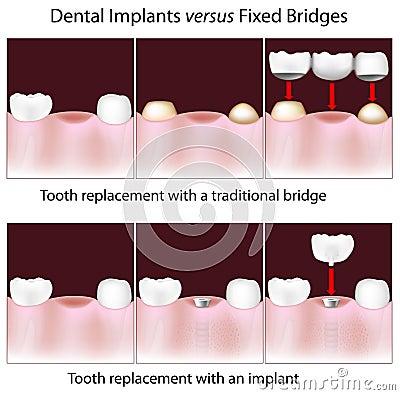 Free Dental Implants Versus Fixed Bridges Stock Photos - 26835273