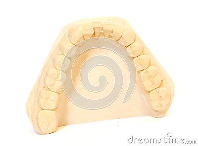 Dental impression 2