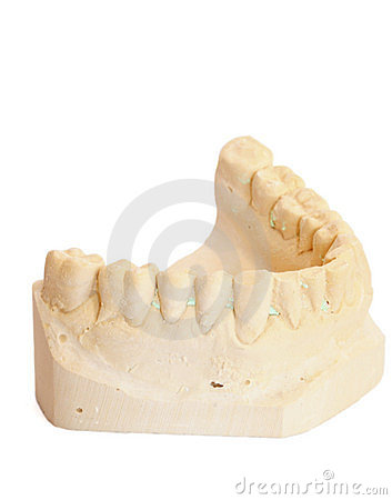 Dental impression 3