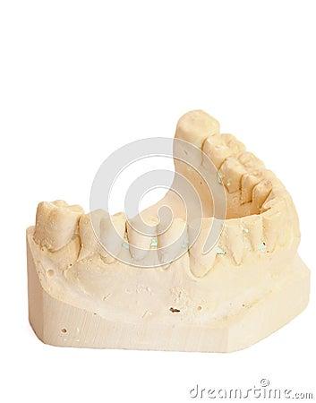 Dental impression 3