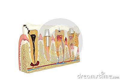 Dental Modell.