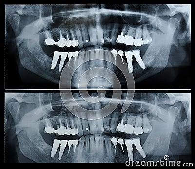 dental radiography principles techniques