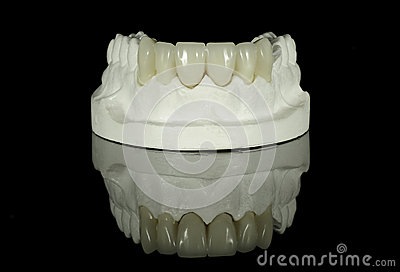 Dental Tooth Bridge