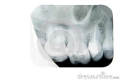dental x ray