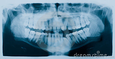 Dental Xray (x-ray)