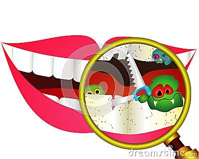 Dentes cariados sob o magnifier