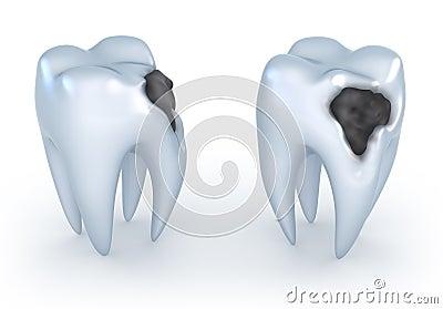 Dentes com cáries