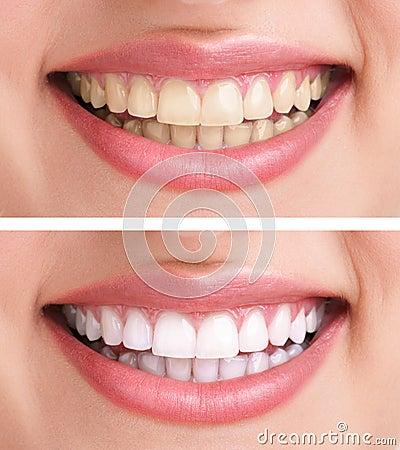 Dentes saudáveis e sorriso