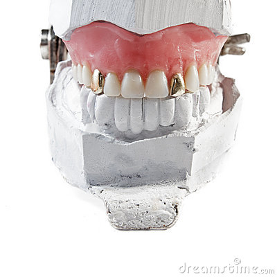 Denture with two gold teeth