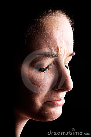 Free Depressed Female Acne Sufferer Stock Images - 11102944