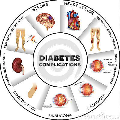 Free Diabetes Complications Royalty Free Stock Images - 62541059