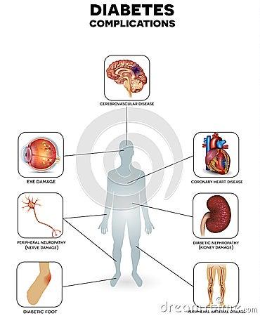 régime alimentaire diabète type 2