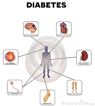 managing type diabetes travel with