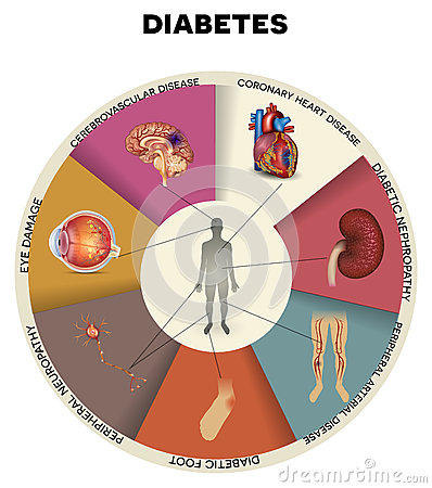 Free Diabetes Mellitus Info Graphic Stock Photos - 62194003