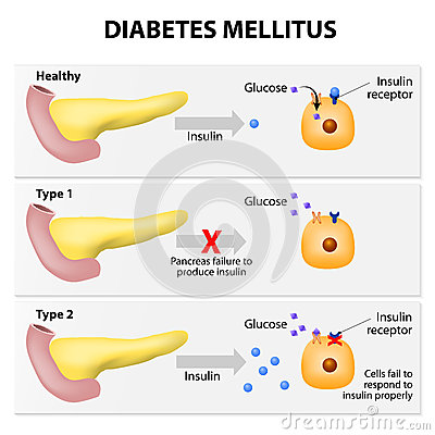 Main types of diabetes mellitus. Either the pancreas not producing ...