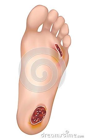 Diabetic foot.