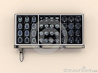 Diagnostic de contrôle