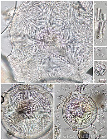 Diatoms - Stephanodiscus And Other Spp. Stock Photo - Image: 14918650