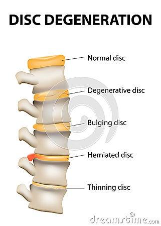 disc degeneration its normal wear tear process aging spine intervertebral discs lose their flexibility elasticity 40929437