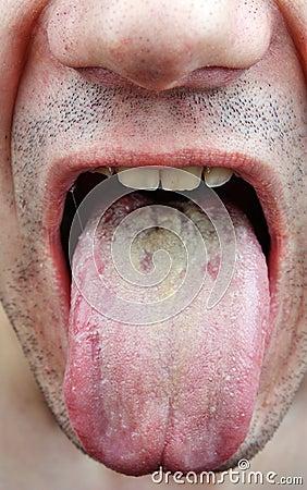 Disease Tongue Stock Photo Image 37501010