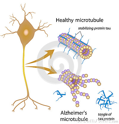 Disintegrating microtubules in Alzheimer disease