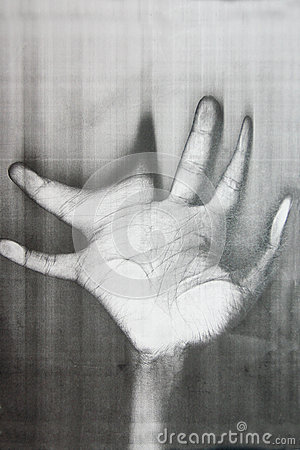 Distorted hand palm