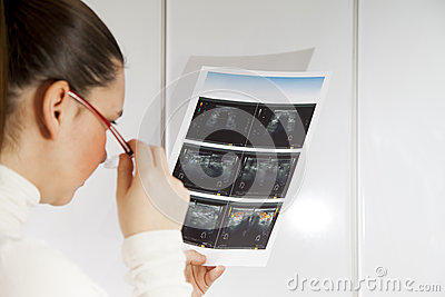Doctor checking thyroid ultrasound photograph