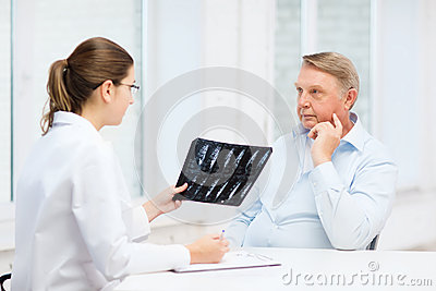 Doctor de sexo femenino con el viejo hombre que mira la radiografía